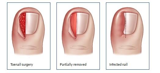 جراحی فرورفتن ناخن در گوشت پاَ