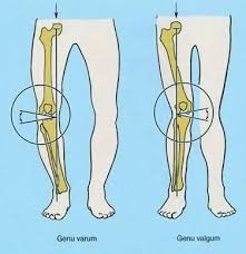 جراحی و استئوتومی زانو