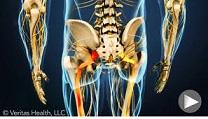 درمان دیسک کمر ، دیسک گردن و سیاتیک در کلینیک درد دکتر ساعد رحیمی نژاد
