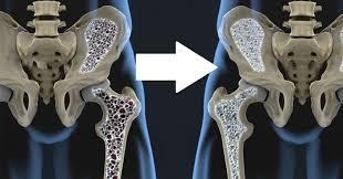 درمان پوکی استخوان در کلینیک درد دکتر ساعد رحیمی نژاد