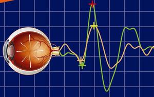 نوار عصب چشم