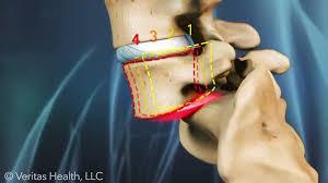 اسپوندیلولیستزیس, جابجایی مهره های کمر , لغزندگی مهره های کمر, جراحی اسپوندیلولیستزیس