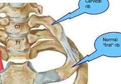 دنده گردنی , دنده اضافی ,  گردن درد , TOS