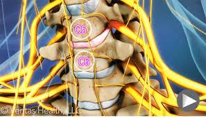 فیلم آموزشی گردن درد ( رادیکلوپاتی گردن )
